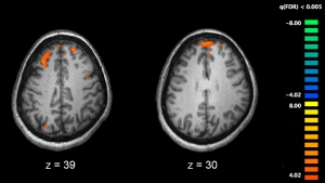 Schizophrenia_fMRI_working_memory